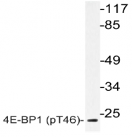 AP20835PU-N - EIF4EBP1 / 4E-BP1