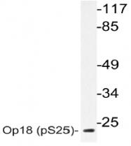 AP20838PU-N - Stathmin / STMN1