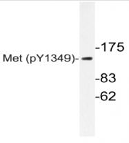 AP20841PU-N - HGF receptor