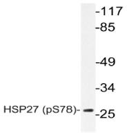 AP20847PU-N - HSPB1 / HSP27