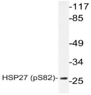 AP20848PU-N - HSPB1 / HSP27