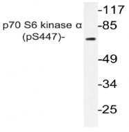 AP20854PU-N - RPS6KB1 / STK14A