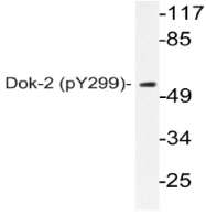 AP20861PU-N - DOK2 / p56 dok2