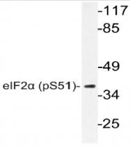 AP20862PU-N - EIF2A / EIF2S1