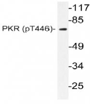 AP20864PU-N - EIF2AK2 / PKR