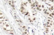 AP20877PU-N - BRCA1 / RNF53