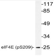 AP20885PU-N - EIF4E