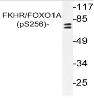 AP20887PU-N - FOXO1A