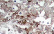 AP20738PU-N - Cortactin