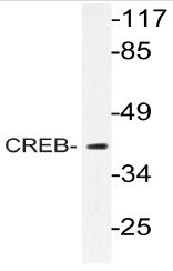 AP20740PU-N - CREB1