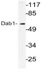 AP20741PU-N - DAB1