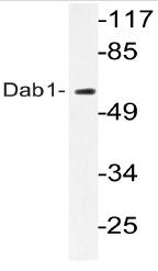 AP20742PU-N - DAB1