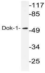 AP20744PU-N - DOK1 / p62 dok