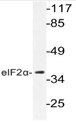 AP20746PU-N - EIF2A / EIF2S1