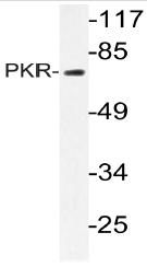 AP20748PU-N - EIF2AK2 / PKR
