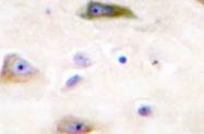 AP20753PU-N - Glutamate receptor 2 / GLUR2