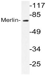 AP20757PU-N - Merlin