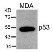 AP08045PU-N - TP53 / p53