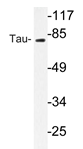 AP20735PU-N - MAPT / TAU