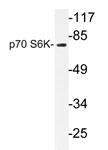AP20733PU-N - RPS6KB1 / STK14A