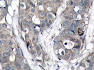 AP20728PU-N - HSPB1 / HSP27