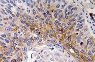 AP20766PU-N - Cardiotrophin-1