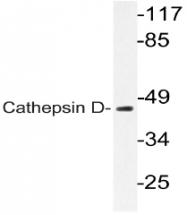 AP20767PU-N - Cathepsin D