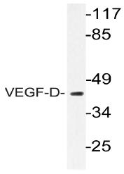 AP20769PU-N - VEGFD