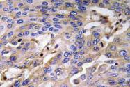 AP20774PU-N - Haptoglobin