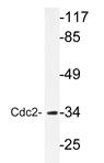 AP20725PU-N - CDK1