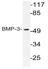 AP20776PU-N - BMP3
