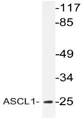 AP20781PU-N - ASCL1