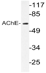 AP20787PU-N - Acetylcholinesterase