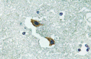 AP20788PU-N - ATP7A