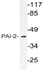 AP20791PU-N - SERPINB2 / PAI2