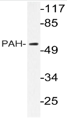 AP20792PU-N - PAH