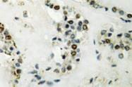 AP20796PU-N - Cyclin E2