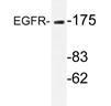 AP20707PU-N - EGFR / ERBB1