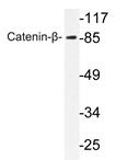 AP20706PU-N - Catenin beta-1