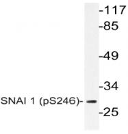 AP20798PU-N - SNAI1