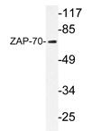 AP20699PU-N - ZAP70