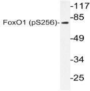 AP20803PU-N - FOXO1A