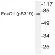 AP20804PU-N - FOXO1A