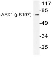 AP20806PU-N - FOXO4 / AFX1 / MLLT7