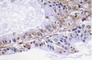 AP20808PU-N - Cofilin-1