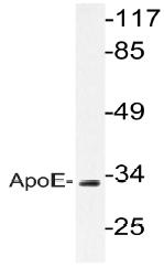AP20663PU-N - Apolipoprotein E / Apo E
