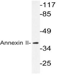 AP20666PU-N - Annexin A2 / ANXA2