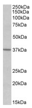 AP21513PU-N - EDG5 / S1P2