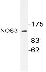 AP20681PU-N - NOS3