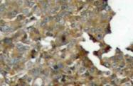 AP20685PU-N - Cofilin-1